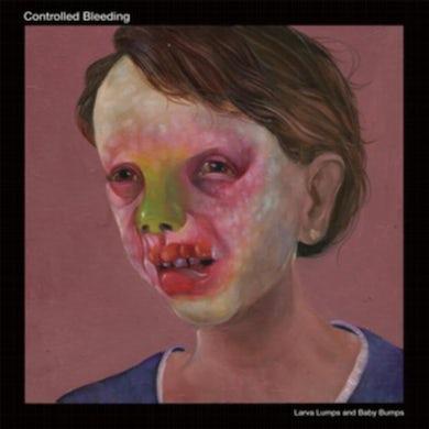 Controlled Bleeding LP - Larva Lumps And Baby Bumps (Vinyl)