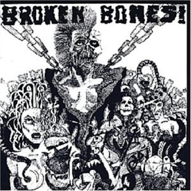 Broken Bones DEM BONES CD