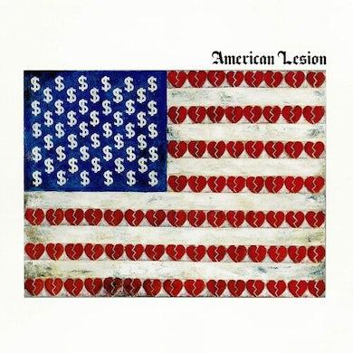 Greg Graffin AMERICAN LESION (BLUE VINYL) Vinyl Record
