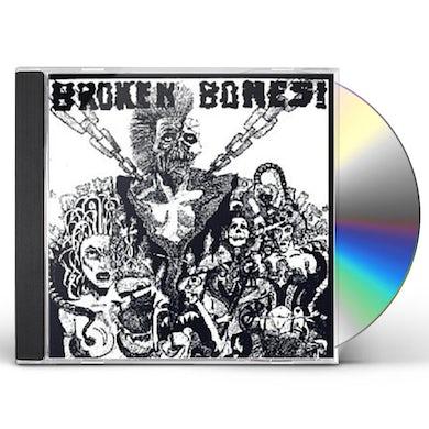 DEM BONES CD